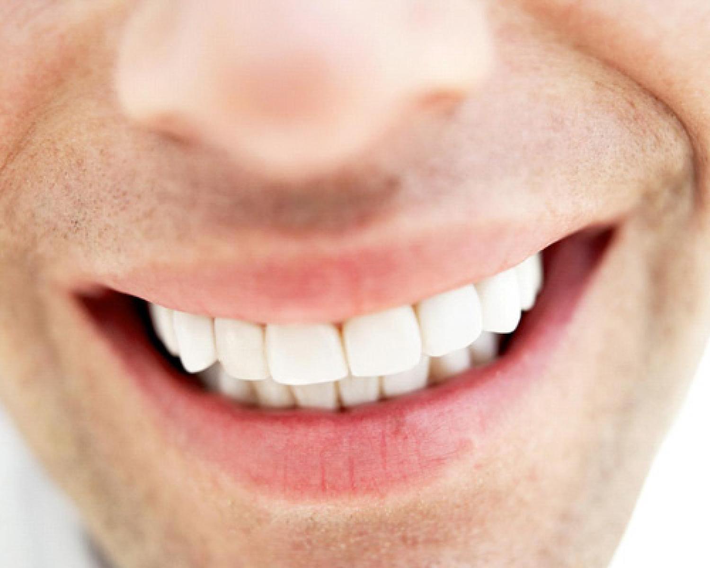 Diş Taşı Hakkında Merak Edilenler? - Batı Ortodonti