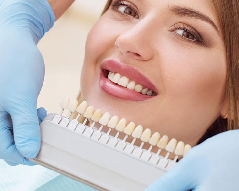 Porselen Laminate Veneer Nedir? - Batı Ortodonti