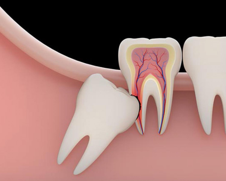 20 Yaş Dişinin Kulak Ağrısına Neden Olabileceğini Hiç Düşündünüz Mü? - Batı Ortodonti