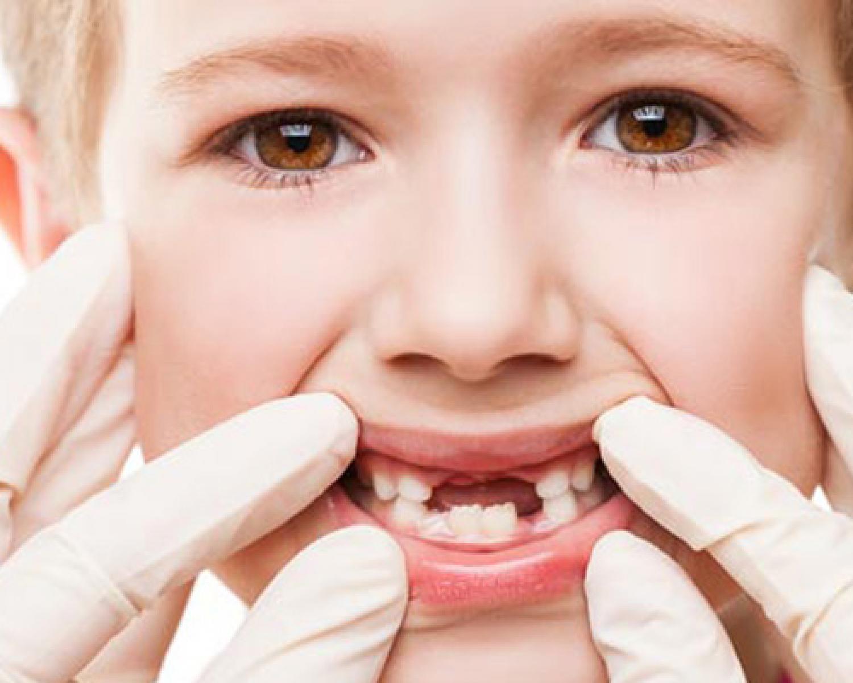 Çocukların Dişleri Neden Erken Çürür? - Batı Ortodonti