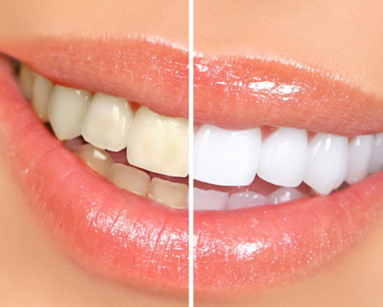 Diş Beyazlatma Zararlı Mı? - Batı Ortodonti