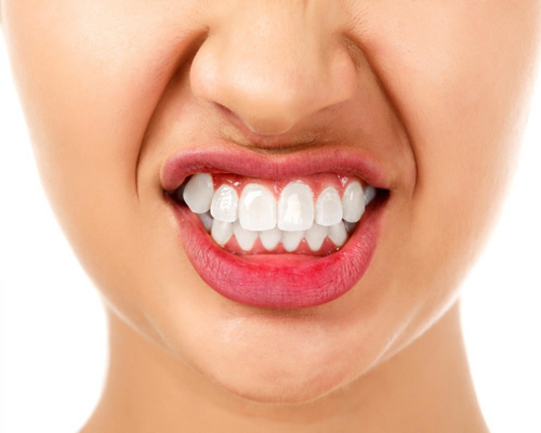 Diş Sıkmanın Felçle Sonuçlanabileceğini Duymuş Muydunuz? - Batı Ortodonti