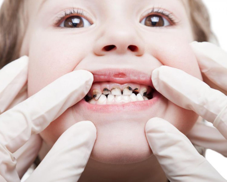 Erken Çocukluk Çürüğü Nedir? - Batı Ortodonti