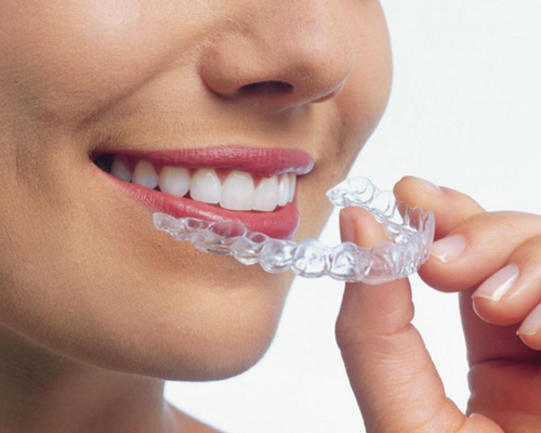 Görünmeyen Diş Teliyle Konforlu Tedavi - Batı Ortodonti