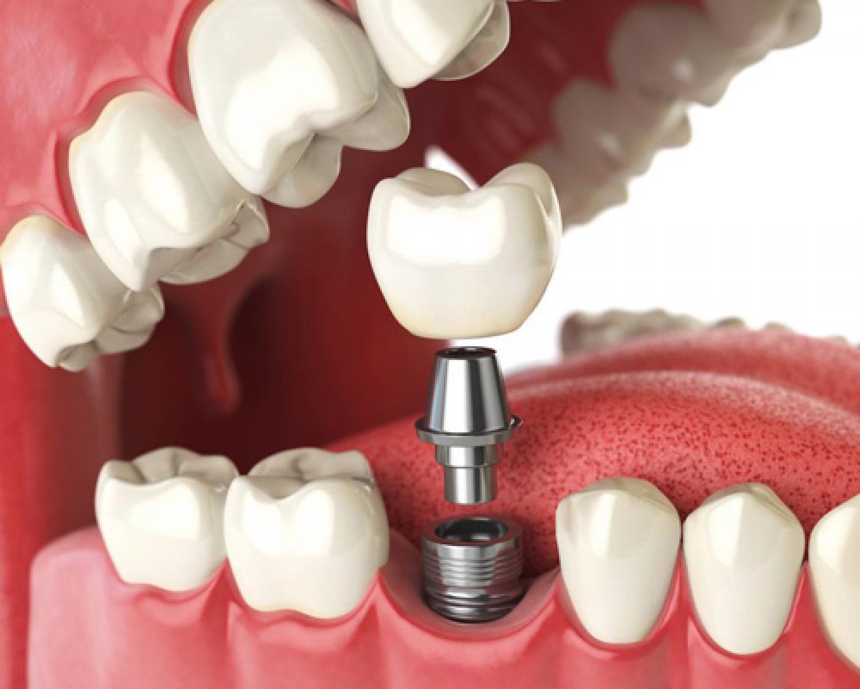 İmplant Tedavisinden Korkmalı Mıyım? - Batı Ortodonti