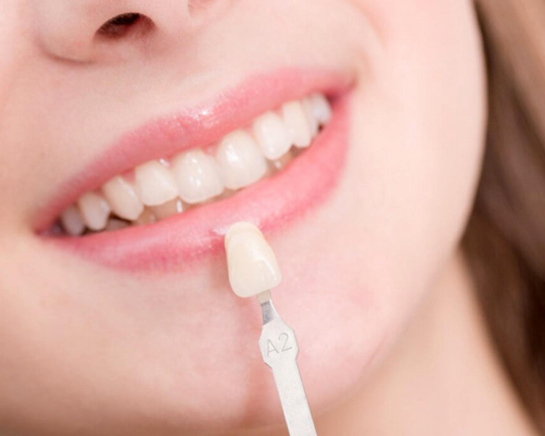 Lamine Yapılırken Dişim Zarar Görür Mü? - Batı Ortodonti